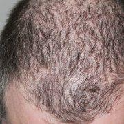 Kann zu viel Testosteron Haarausfall vorbeugen und stoppen?