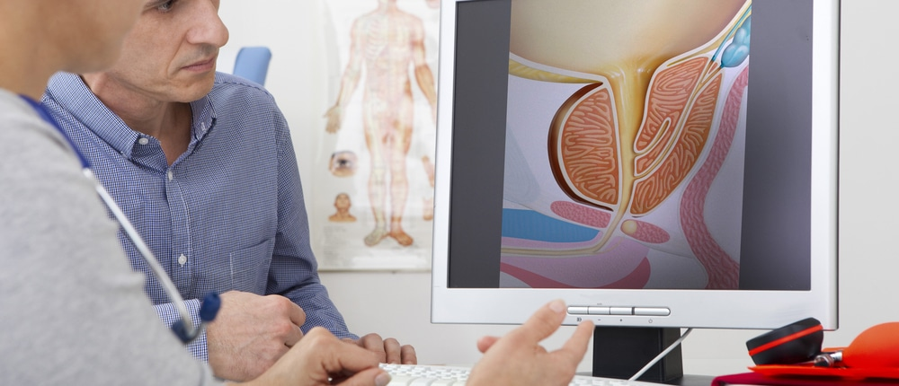 Eine gutartige Prostatavergrößerund dessen Symptome